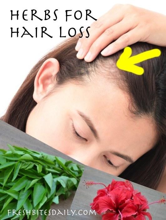 Herbs for Hair Loss - Natural Remedies