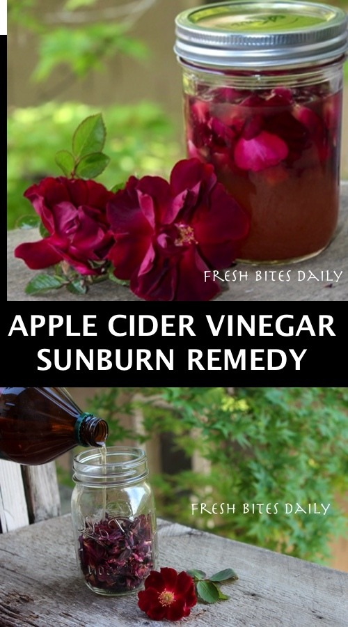 Apple Cider Vinegar For Sunburns With A Surprise Inside!